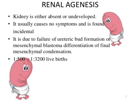congenital-anomalies-of-renal-system-5-638